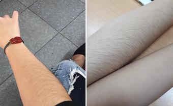Nhân tướng học: Con gái có nhiều lông tay, lông chân là phúc tướng - Blog Marry