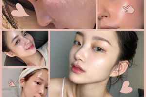 Trải nghiệm chăm sóc da tại nhà như ở Spa trong bối cảnh dịch bệnh - Blog Marry